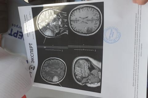 Это снимок  головы