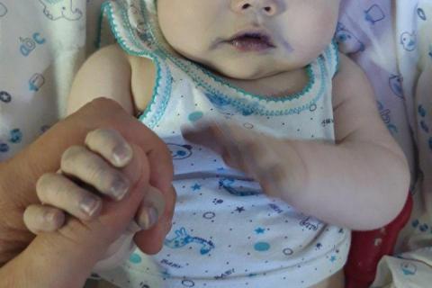 Здесь видны его синие ногти и бледный цвет кожи